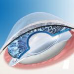 ICL ist eine implantierbare Kontaktlinse, damit man keine Brille mehr benötigt